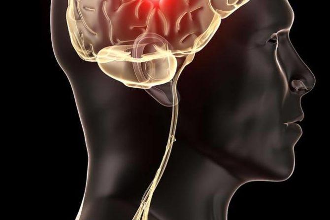 Une hernie discale cervicale peut provoquer des maux de tête