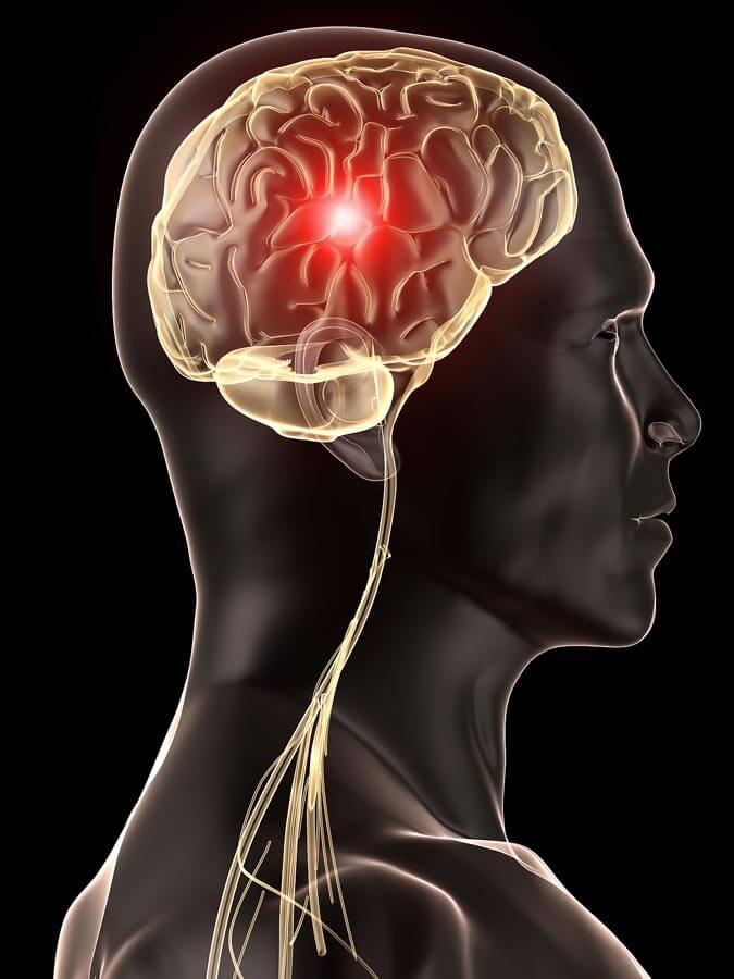 Cause des migraines et maux de tête