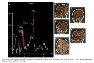 Mesure des métabolites dans cortex cérébrale après manipulation vertébrale
