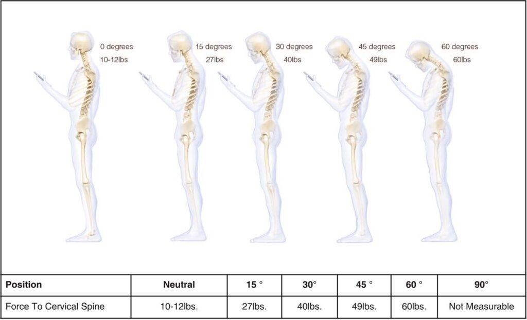 Posture de la tête en avant et douleur cervicale et usure