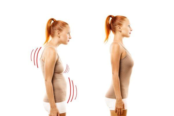 Posture de la tête en avant ou perte de la lordose cervicale