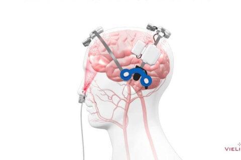 Photobiomodulation cérébrale et nasale