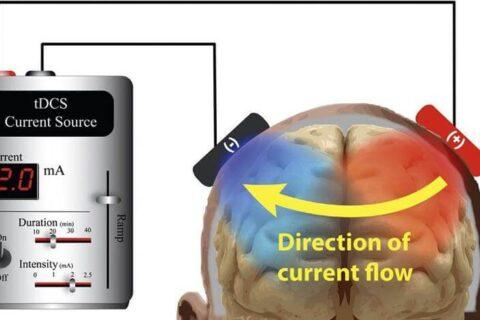 tdcs ou stimulation transcrânienne à courant direct
